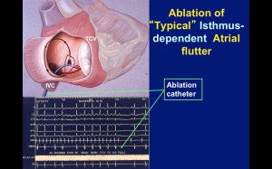 Catheter ablation of atrial flutter