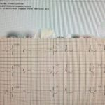 Fake Atrial Fibrillation — A Growing Patient-Safety Issue